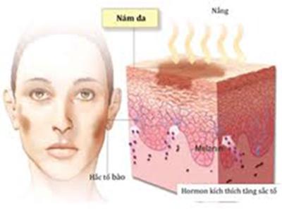 tìm hiểu về bệnh nám da và cách điều trị