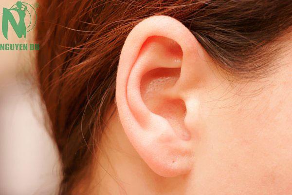 chỉnh hình tai vểnh