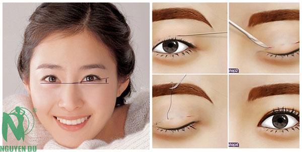 cắt mí mắt